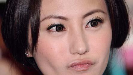 刘心悠整容动了眼睛和鼻子是真的吗_整形频道