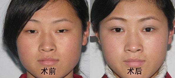 双眼皮整形前后对比图图片