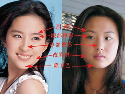 刘亦菲整容前后对比图片